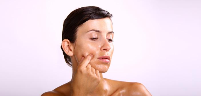 Hvad er fedtet hud?