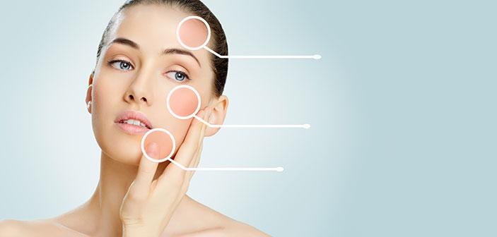 Din hudtype er nøglen til den rette pleje