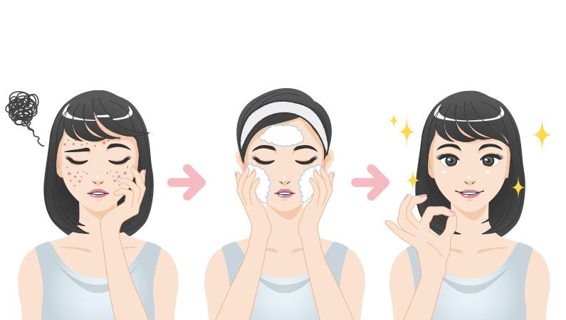 Husk at rense huden